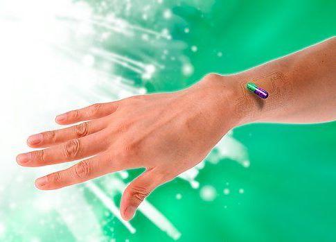 Human microchip implantation